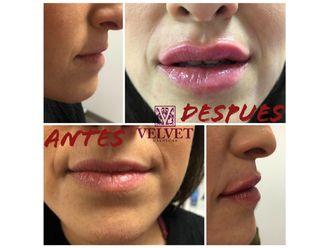 Aumento labios-636425
