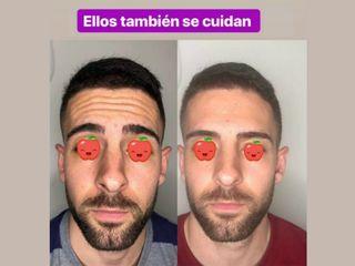 Antes y después Reducir arrugas