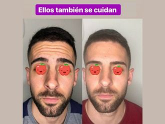 Rejuvenecimiento facial-636428