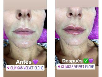 Aumento labios-640368