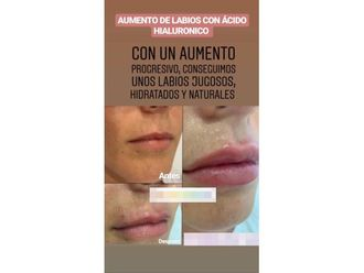 Aumento labios-642643