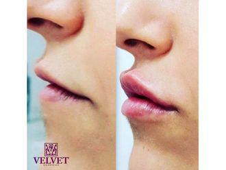 Aumento labios - 643635