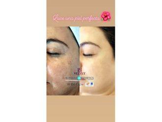 Rejuvenecimiento facial-643636
