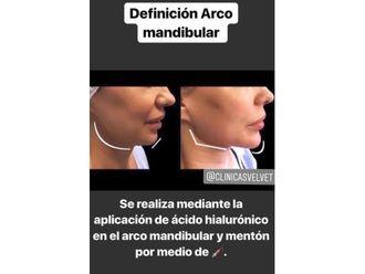 Cirugía maxilofacial-643916