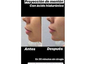 Cirugía maxilofacial - 643917