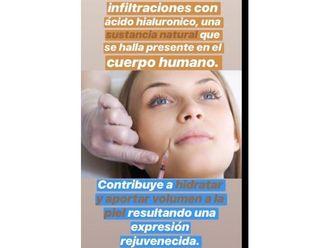 Ácido hialurónico-643919