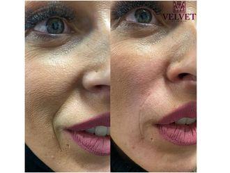 Rejuvenecimiento facial - 646301