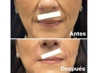 Rellenos faciales-661119