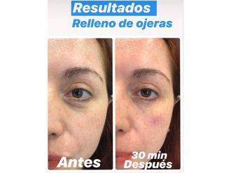 Medicina estética-661120