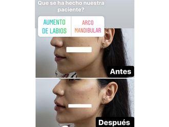 Rellenos faciales-661123