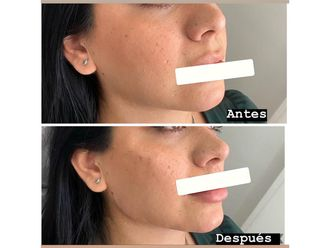 Rellenos faciales-661124