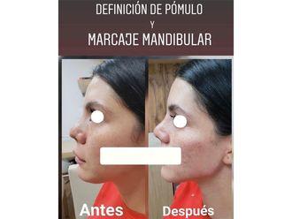 Rellenos faciales-661125