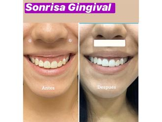 Blanqueamiento dental - 661126