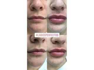 Antes y después Aumento de labios - Clínicas Velvet