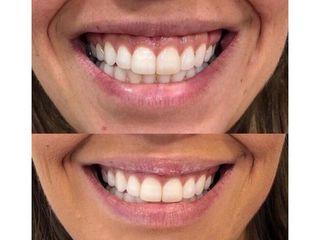 Antes y después Sonrisa gingival - Clínicas Velvet