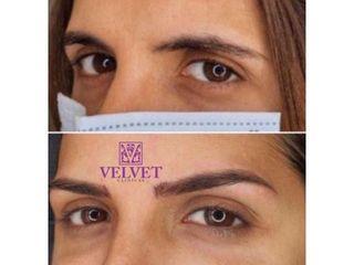 Antes y después Hilos tensores - Clínicas Velvet