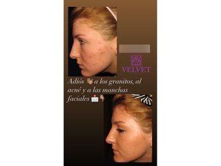 Antes y después Tratamiento antiacné - Clínicas Velvet