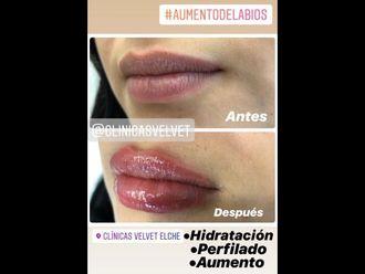 Aumento labios-740469