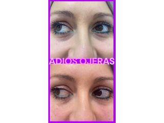 Eliminación de ojeras - Clínicas Velvet