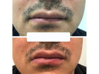 Aumento de labios - Clínicas Velvet