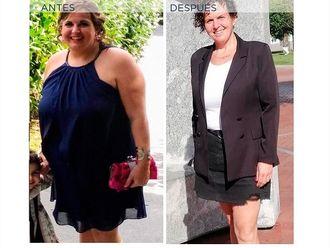POSE Reducción de estómago - 791809