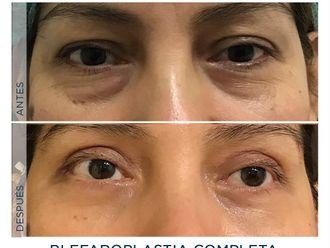 Blefaroplastia - 791813