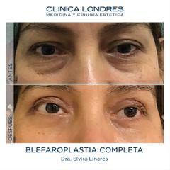 Blefaroplastia - Clínica Londres