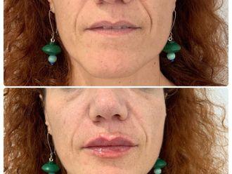 Aumento labios-644272