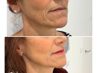 Eliminación arrugas - 648535