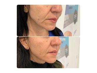 Rejuvenecimiento facial-661792
