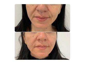 Rejuvenecimiento facial-661793