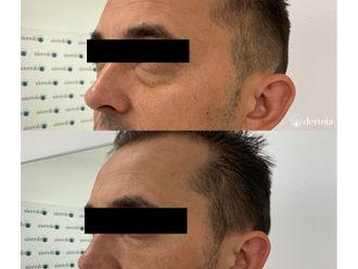 Eliminación ojeras-662107