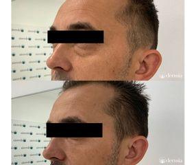 Dermia - Tratamiento de ojeras