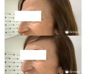 Dermia - Arrugas perioculares