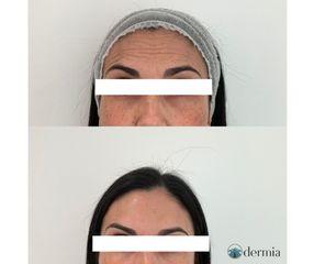 Dermia - Arrugas frente