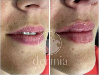 Aumento labios-687751