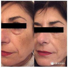 Eliminación de ojeras - Dermia