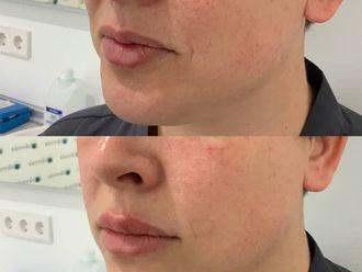 Aumento labios-737801