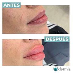 Aumento de labios - Dermia