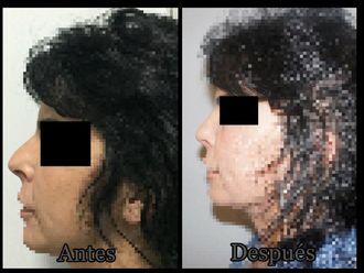 Cirugía estética-624098