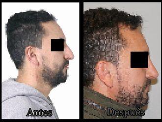 Cirugía estética-624107