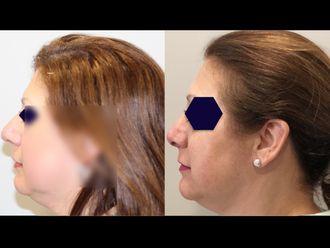 Cirugía estética-642940