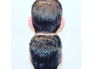 Antes y después Otoplastia - Dr Francisco Ortiz Bish