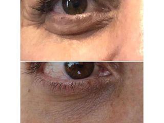 Antes y después Eliminación de ojeras - Dr Francisco Ortiz Bish