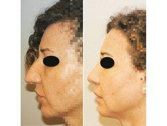 Cirugía estética-687640