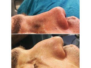 Rinoplastia - Dr Francisco Ortiz Bish