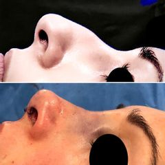Antes y después Rinoplastia - Dr Francisco Ortiz Bish.jpg