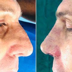 Antes y después Rinoplastia - Dr Francisco Ortiz Bish