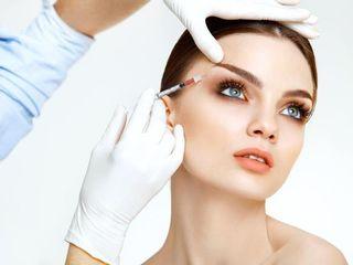 Botox, especialistas