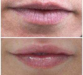 labios ácido hialurónico antes y después